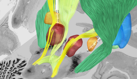 The orange area represents the target region for stimulation, the subthalamic nucleus. Surrounding nerve tracts (dark green, light green, yellow) connect the electrode to other key areas of the brain. Image: Andreas Horn, Charité.